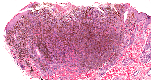 metastatic renal cell carcinoma