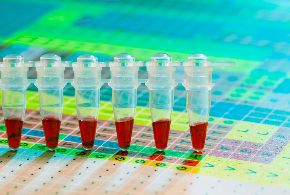 Novel Cell Therapy Targets Prostate Cancer Stem Cells
