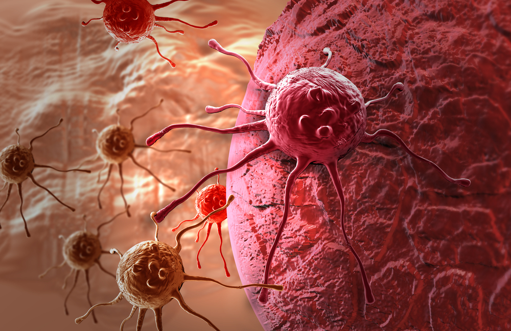 Theralase Offers Leading Technology For Cancer Treatment