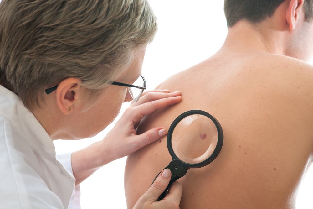 melanoma treatment