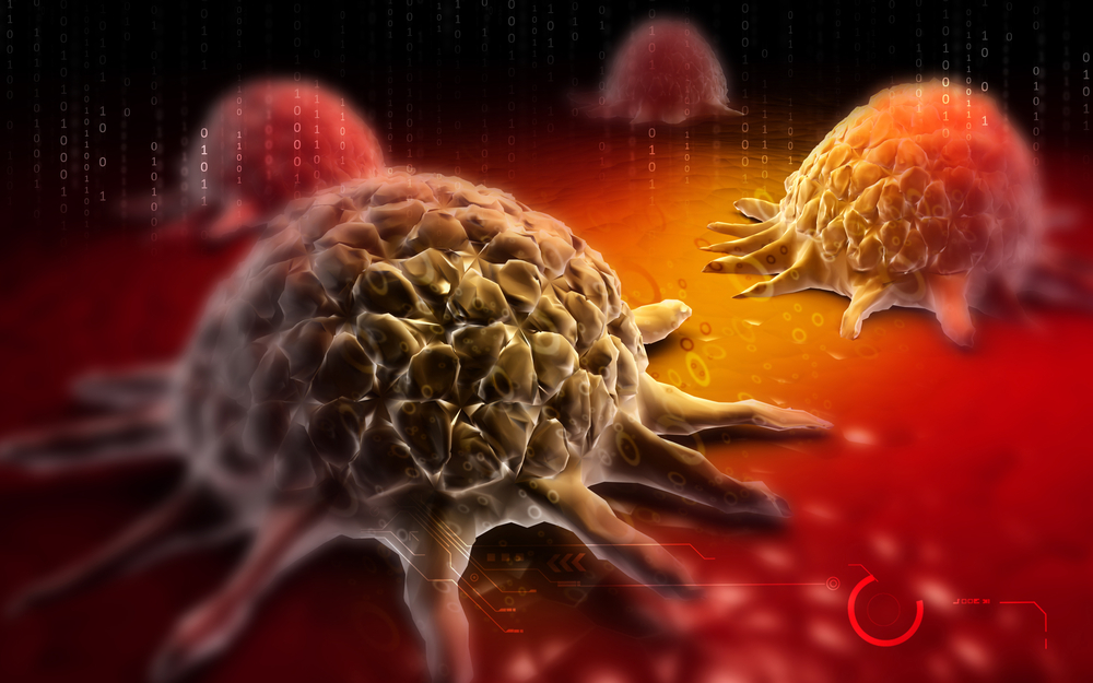 Promising Combined Immunotherapy in Untreated Advanced Melanoma Patients Revealed