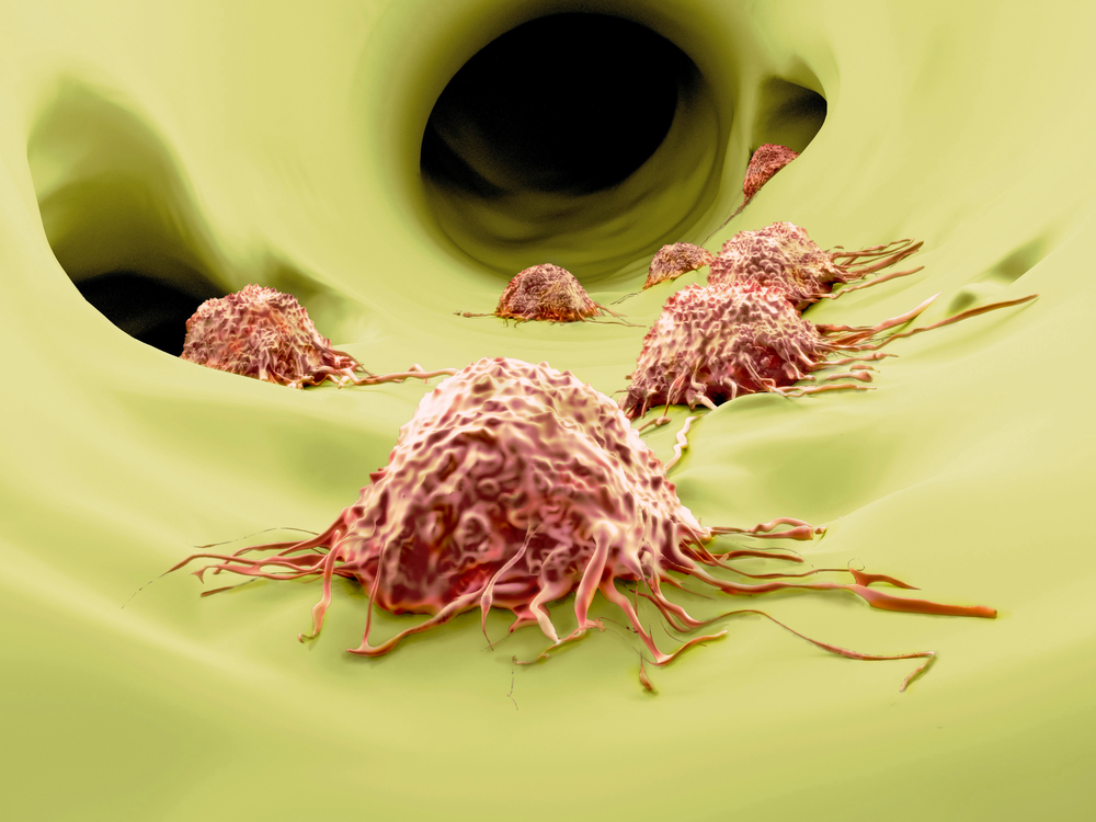 Cancer Cells Disguise as Immune Cells to Form Metastases