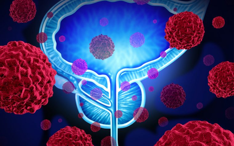 Pembrolizumab may help men with metastatic prostate cancer