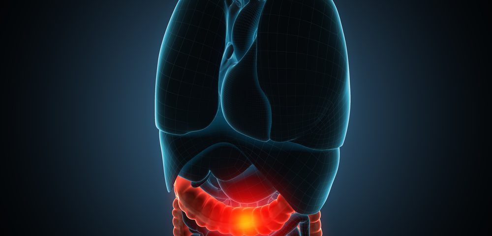 Certain Metastatic Colorectal Cancer Responsive to Combined Immunotherapy