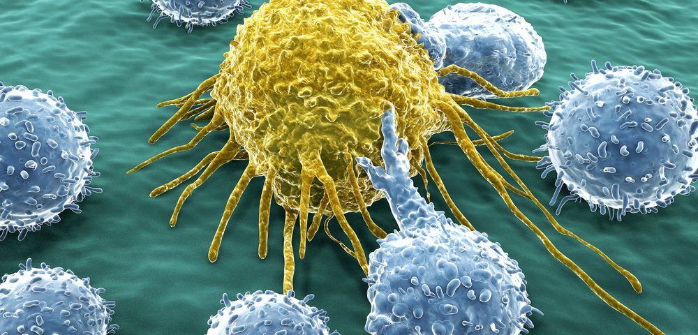 Metastatic Melanoma Immunotherapy Combo Shows Promise in Phase 1b/2 Trial