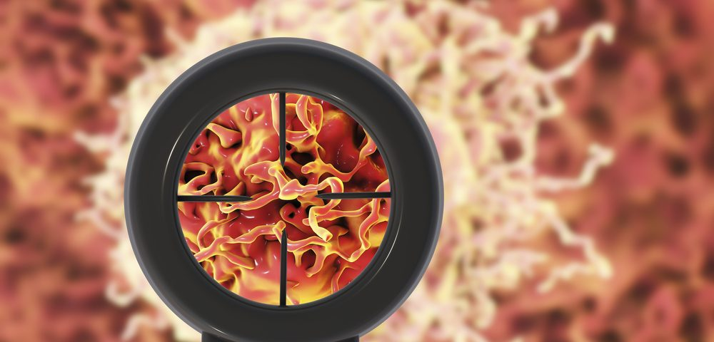 OSE-172 Continues to Show Promising Activity Against Multiple Cancer Models, Researchers Say