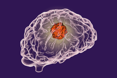 Potential Glioblastoma Therapy Safe to Deliver, Medicenna's Interim Phase 2 Data Shows